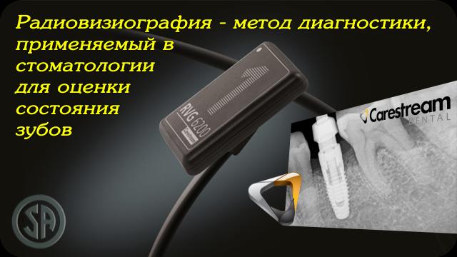 Радиовизиография